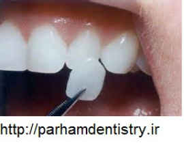 دندانپزشکی   ایمپلنت   لامینت